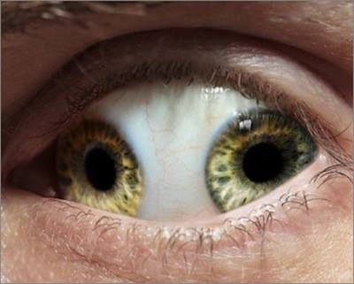 """TWO PUPILS IN ONE EYE!  Pupula Duplex, or """"double pupil,"""" is a genetic mutation whereby a person has two irises, two corneas and two retinas within one eyeball. Although it may look a little freaky, Pupula Duplex gives the person increased focus and intake of visual information!"""