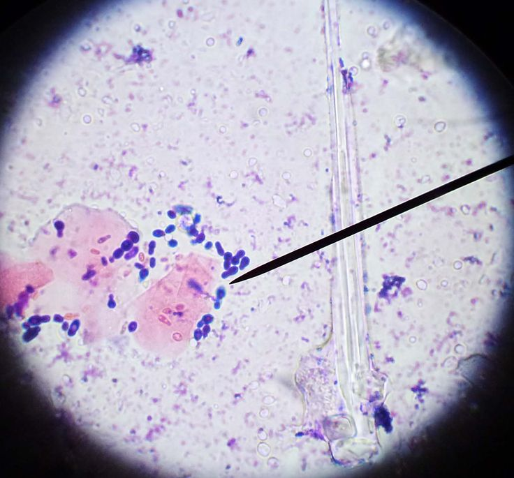 Budding Yeast Found In An Ear Cytology.