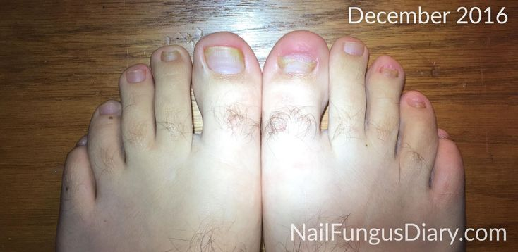 I had horrible toenail fungus for ten years and got rid of it without dangerous and expensive prescription drugs. See pictures and learn how I did it.