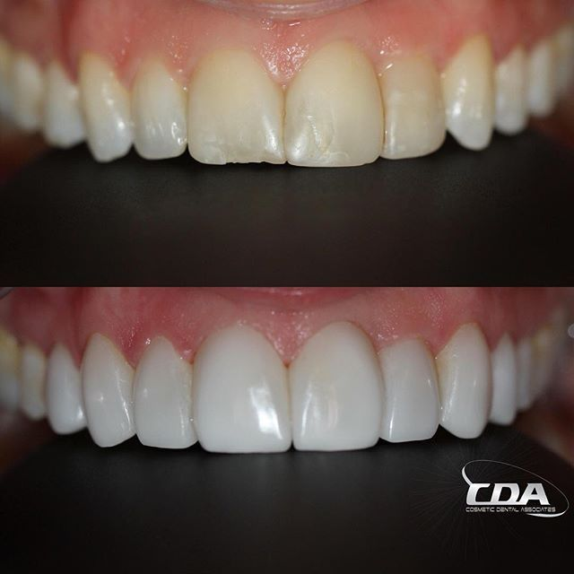 We Always Strive To Make Our Veneers Look As Natural As Possible Without Comprising The Brightness Our Patients Desir Dental Cosmetics Dental Dental Procedures