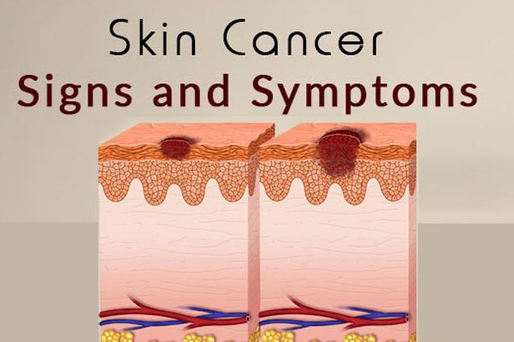 Early Signs Of Skin Cancer | Kinds Of Skin Cancer