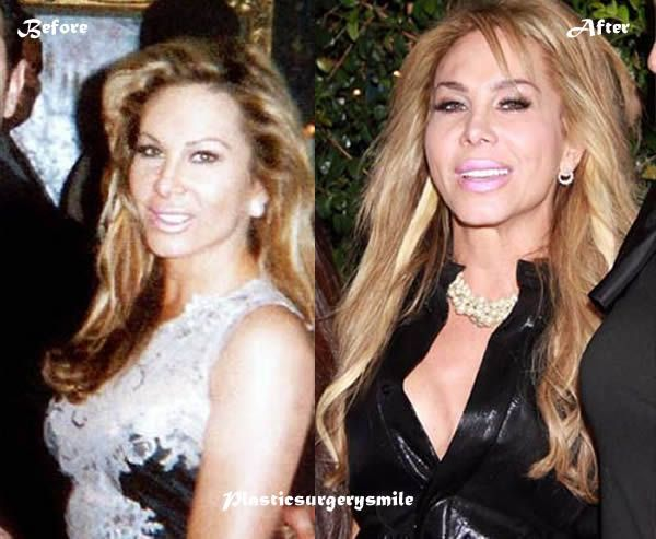 17 best images about celebrity plastic surgery before and