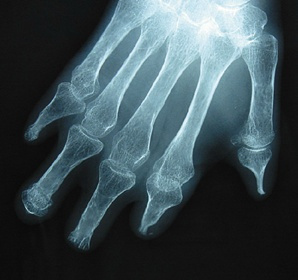 A 71-year-old woman presented with Raynauds phenomenon