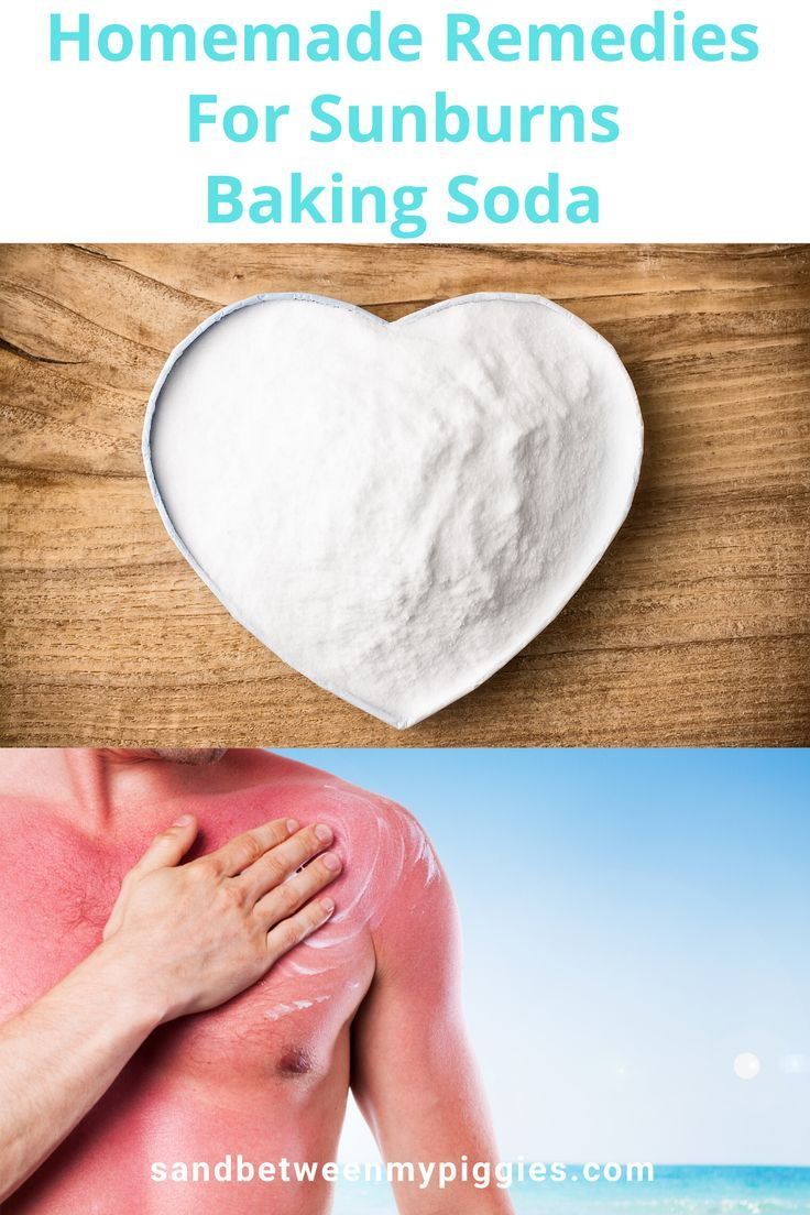Baking Soda Is One Of Many Excellent Homemade Remedies For Sunburns In 2020 Sunburn Remedies Sunburn Relief Instant Sunburn Relief