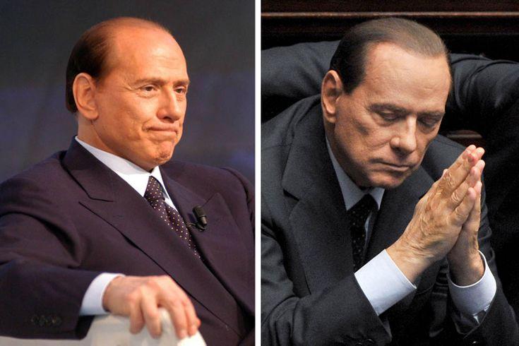 Haartransplantation  Erfahrungen -Berlusconi