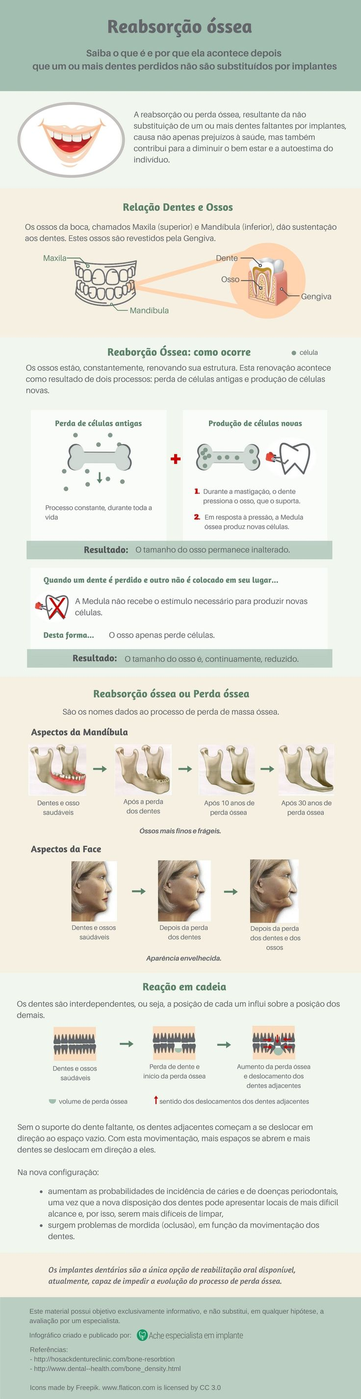 Você sabe o que é perda ou reabsorção óssea, e por que ela ocorre após a extração de um dente? http://acheespecialistaemimplante.com.br/tudo-sobre-implante-dentario/reabsorcao-ossea/