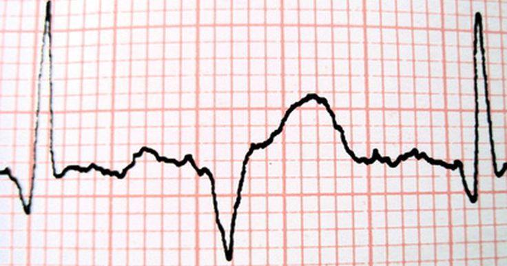 Como o sistema cardiovascular ajuda a manter a homeostase. A homeostase se refere à habilidade do corpo de manter as condições internas relativamente estáveis - até mesmo quando ele está sujeito a mudanças externas. A temperatura corporal, volume de sangue e a frequência cardíaca são apenas alguns exemplos das centenas de características que o corpo regula para manter o equilíbrio homeostático. Esse ...