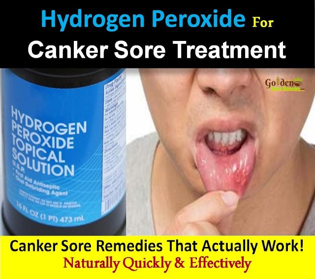 How To Use Hydrogen Peroxide For Canker Sores: How To Get Rid Of Canker Sore With Hydrogen Peroxide: 5 Effective Home Remedies For Canker Sores Treatment. Canker Sore Causes, Symptoms, Treatments,