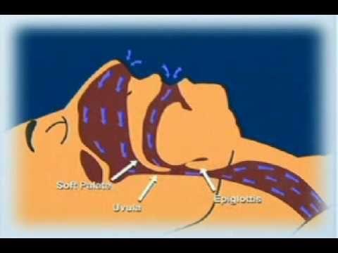 Sleep Apnea Testing - What Causes Sleep Apnea