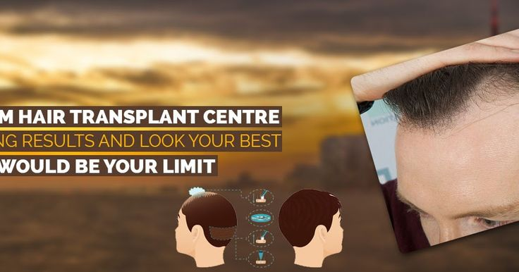 In order to #overcome the #hair #loss problem, you may used to apply various other options like medicines, therapies, #artificial hair #restoration etc. But with best #hair #transplant treatment from Satyam hair transplant centre, you can get the #permanent #solution of this problem. For more details, visit our blog post.