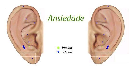 Tratamento com auxilio de Koryosoft_AURICULO:  http://koryo.com.br/produtos/koryosoft-auriculo  Sintoma: Ansiedade  Palavra utilizada na busca no Koryosoft: - Ansiedade  Pontos selecionados: Olho, Coração, Ouvido central, Hipófise, Ápice da orelha, Shenmen, Simpático, Área de neurastenia
