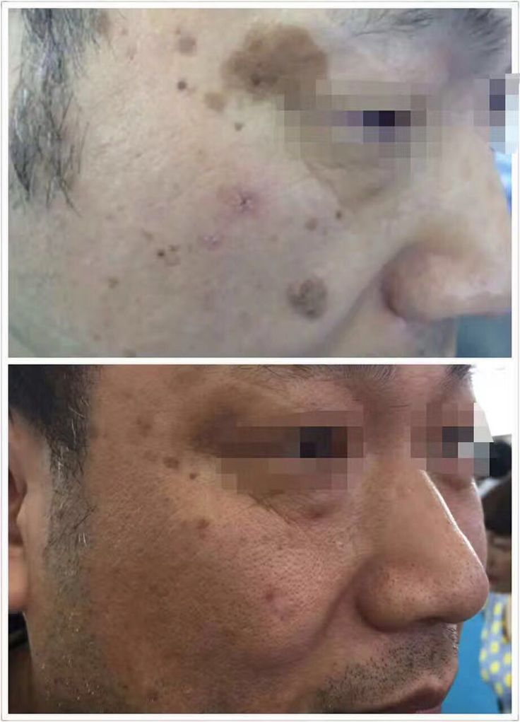 more and more young people have age spot nowadays, not only the old. but never mind this, HONKON Q-switch Nd:Yag Laser can help you remove all of these easily. just contact Luna: +86 13910901316