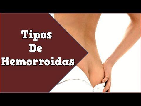 Tipos De Hemorroidas, Hemorroida Cirurgia, Como Evitar Hemorroidas, Hemorroidas Externas Tem Cura - http://tratamento.100hemorroidas.net/tipos-de-hemorroidas-hemorroida-cirurgia-como-evitar-hemorroidas-hemorroidas-externas-tem-cura/