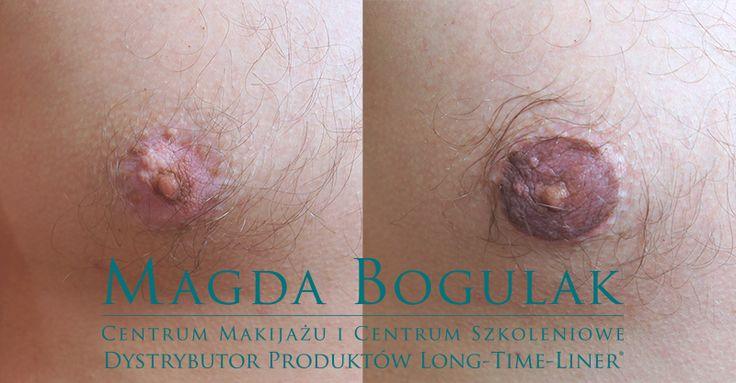 Pigmentacja medyczna otoczki brodawki sutkowej - plamy po bielactwie.