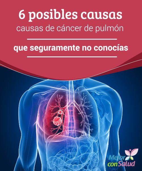 6 posibles causas de cáncer de pulmón que seguramente no conocías Aunque no seamos fumadores, día a día estamos expuestos a múltiples factores que pueden favorecer la aparición de enfermedades pulmonares, por lo que conviene estar alerta y evitarlos a l máximo