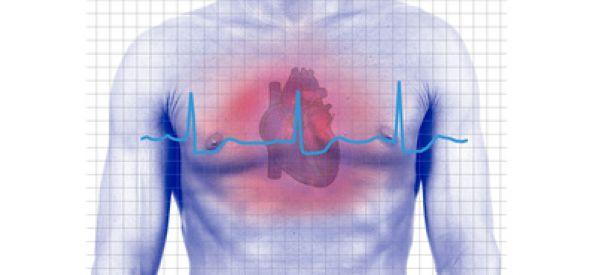 Aire vs Oxígeno en el Infarto agudo de miocardio con elevación del ST