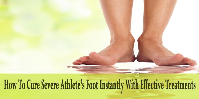 How To Cure Severe Athlete's Foot Instantly With Effective Treatments  If you have severe athlete's foot then just try these best treatments with creams, ointments and medications to cure severe athlete's foot. Know more at: https://www.bestfootcares.com/athletes-foot/cure-severe-athletes-foot