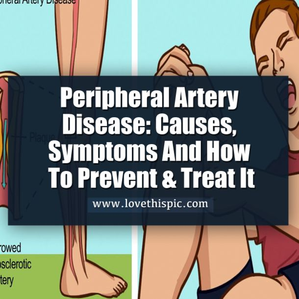 Tiredness when walking and cramping or pain in your lower extremities could mean you have peripheral artery disease.