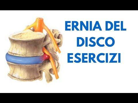 ERNIA DEL DISCO SINTOMI E CURE - ESERCIZI ERNIA DEL DISCO LOMBARE - ERNIA DEL DISCO L5 S1 - L4 L5 - YouTube