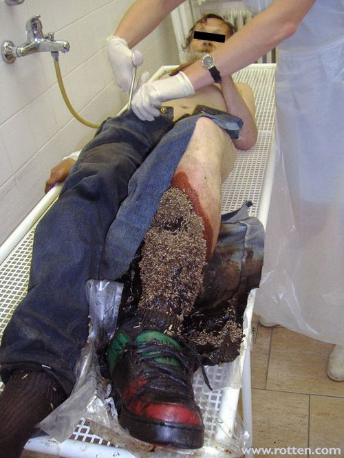 man with a serious maggot problem