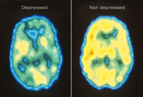 pet scan of depressed brain chemistry-it isn't 'all in your head,' but then again it is.