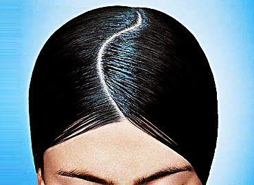Remedios caseros para la psoriasis en el cuero cabelludo en https://www.youtube.com/watch?v=7PisXqI9HGY