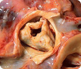 Aortic Stenosis Picture - Defective Aortic Valve That Is Narrowed