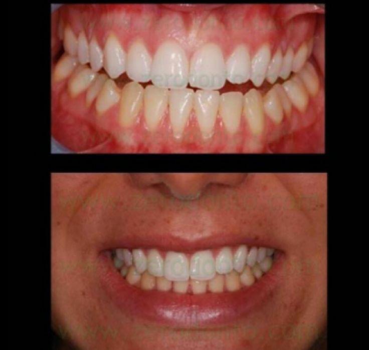 Lo Sbiancamento Dentale rappresenta un trattamento cosmetico e conservativo che permesse il cambiamento del colore del dente rendendolo più chiaro.  Caso di sbiancamento domiciliare della sola arcata superiore con perossido di carbammide al 15%.