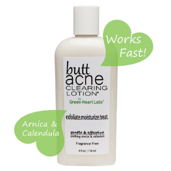 Butt Acne Clearing Lotion is a revolutionary body acne treatment. The first and only product made for buttocks breakouts.