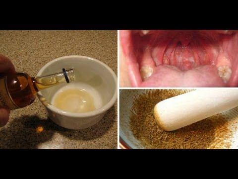Curar dor de garganta e amigdalite em 1 noite com este remédio caseiro