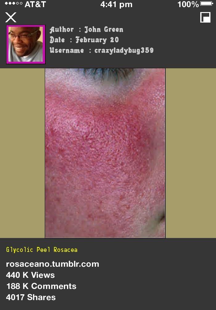 Glycolic Peel Rosacea 075609 - Rosacea Free Forever.