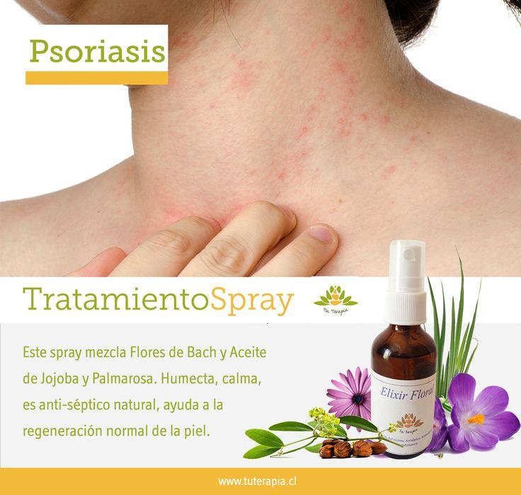 Tratamiento en spray para la psoriasis y la sanación emocional