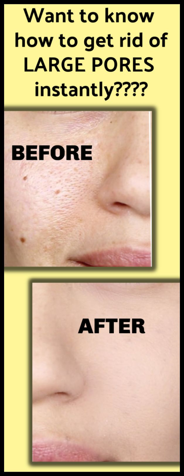 your skin may look loose because of large open pores, here is the quick 5 minutes solution – must try