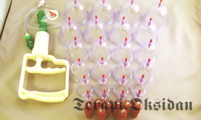 Disposing of Dirty Blood by Cupping Therapy