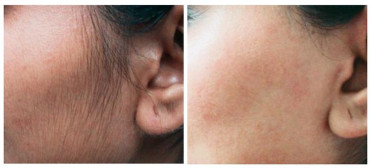 Laser Hair Removal results like this are LIFE CHANGING. Even better part? They're also permanent. #philadelphia #skincare #gentlemax