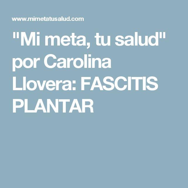 """Mi meta, tu salud"" por Carolina Llovera: FASCITIS PLANTAR"