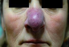 Lupus pernio= Besnier Boeck Schaumann=type of Sarcoidosis.