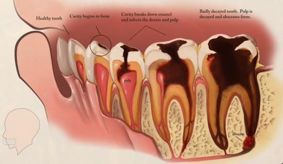 Tooth decay and cavities are among the world's most common oral health problems. These problems are most often seen in children, teenagers and older adults. However, anyone can get cavities. Dental cavities, also referred to as caries, are holes in the teeth caused by tooth decay. Decay usually... #toothdecaytreatment