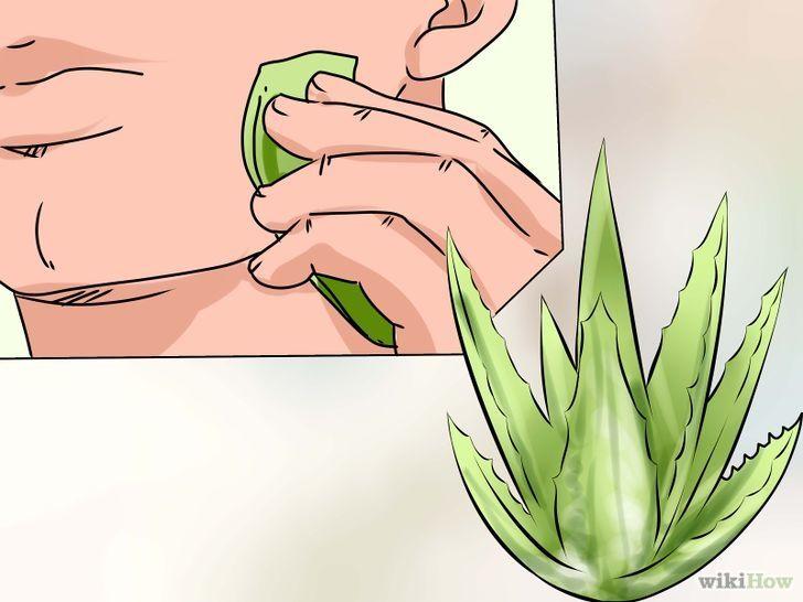 Mascarillas y tratamientos para las marcas de acne