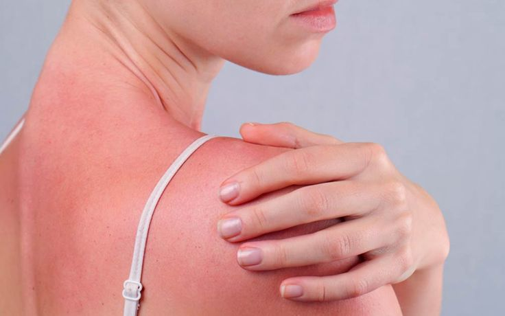 Irina Bg/Shutterstock Summer isn't exactly flu season, so if you feel achy or have other flu-like symptoms after a long day in the sun, you (and not a virus) may be to blame.
