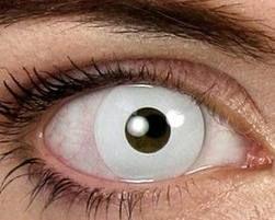 Uma nova moda, que vem ganhando cada vez mais espaço entre as pessoas, são as lentes de contato coloridas. Essas lentes de contato coloridas e com desenhos,