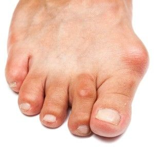 Bunion Blues: 5 Tips to Ease Your Pain