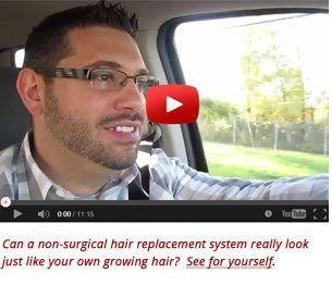 Hair Restoration San Diego – Orange County California #san #marcos #treatment #center http://detroit.remmont.com/hair-restoration-san-diego-orange-county-california-san-marcos-treatment-center/  # Hair Restoration San Diego Orange County Hair Loss Treatment Solutions Dermatex: Proven Hair Loss Solutions for Men Women Dermatex Hair Restoration professionals have been helping men and women with thinning hair and hair loss in the San Diego and Orange County region for over 27 years. Whether its…