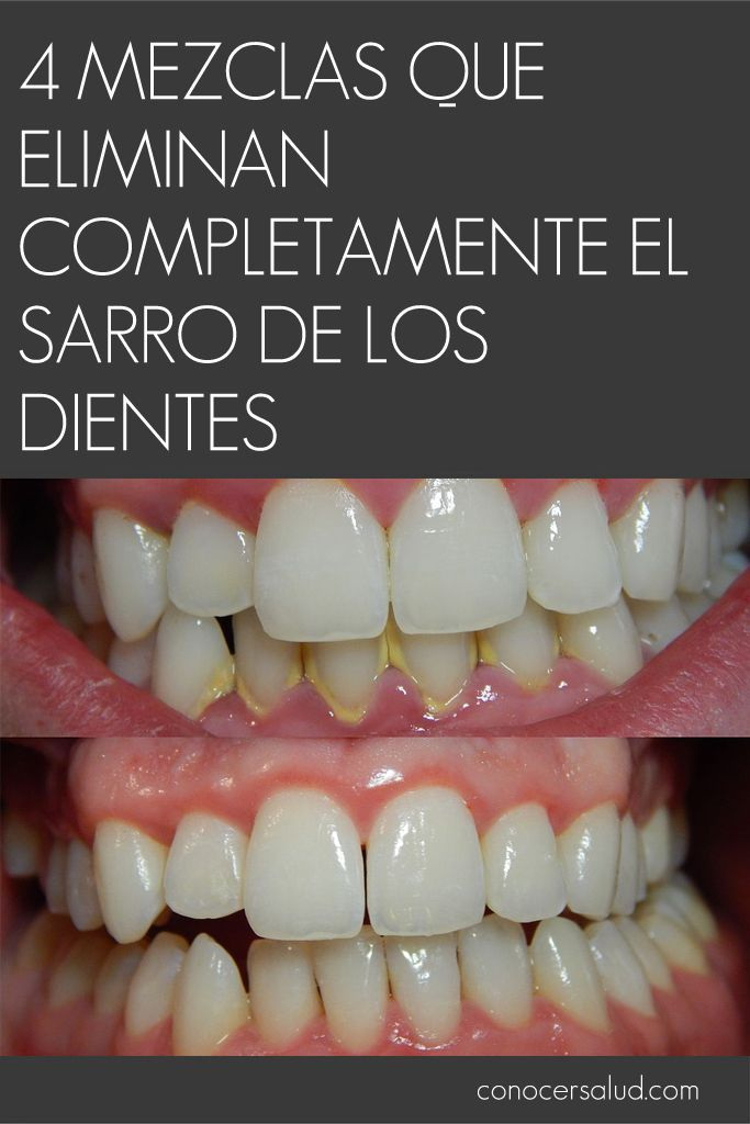 4 mezclas que eliminan completamente el sarro de los dientes