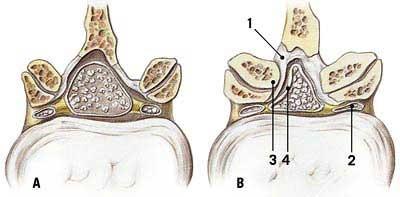 Lumbar Spinal Stenosis: A Definitive Guide #illness #pain