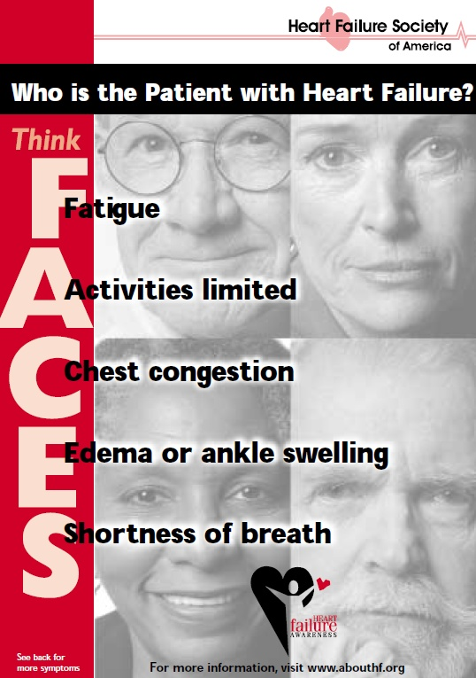 What are symptoms of heart failure? Remember the acronym FACES.