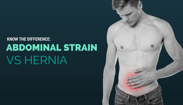17 Best images about Hernia Types & Treatment | Abdominal ...