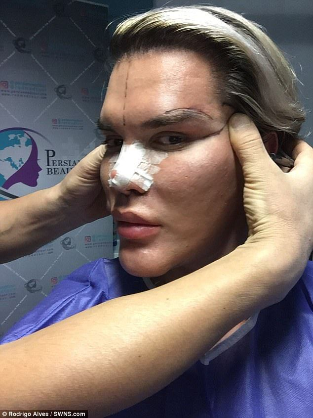 Brazil-born Rodrigo Alves, 34, who lives in London filmed himself during a procedure to give him cat eyes during a 'surgery holiday' in Tehran