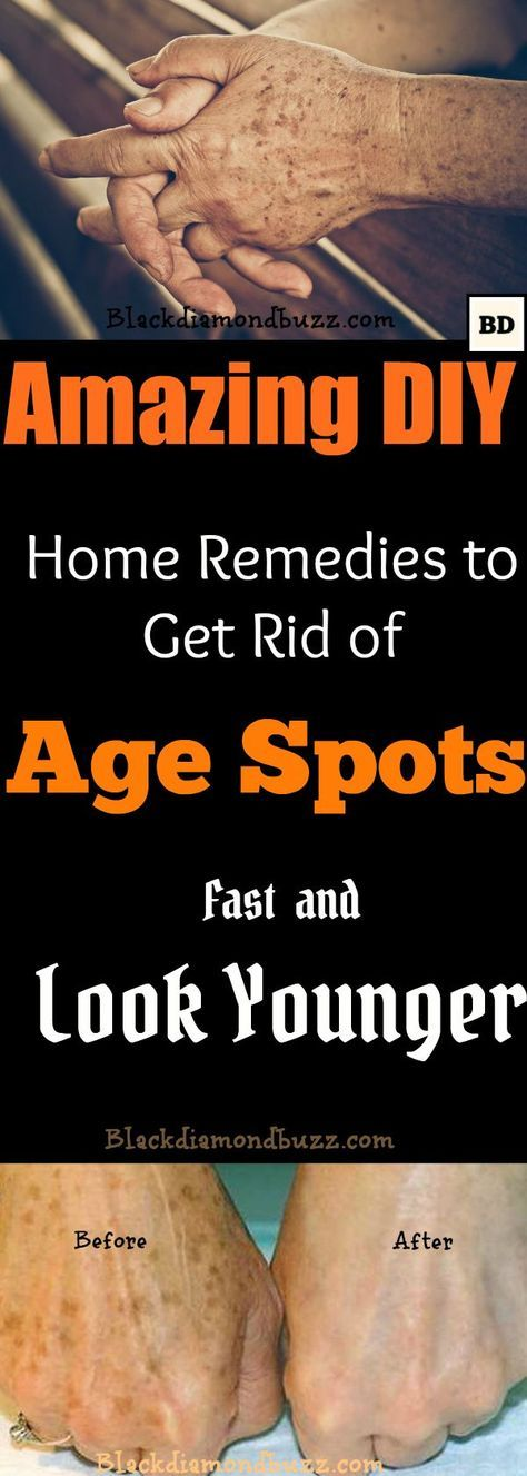 How to Get Rid of Age Spots on Face | 7 DIY Home Remedies for dark age spots Removal. Younger people probably have no idea what age spots are. However, as one grows older and the skin matures, the emergence of age spots on the skin is imminent. There is no particular age when age spots emerge for the first time; their appearance depends very much on one's habits and lifestyle. For instance, staying in the sun for a long time may cause age spots to appear earlier, while having a healthy diet…