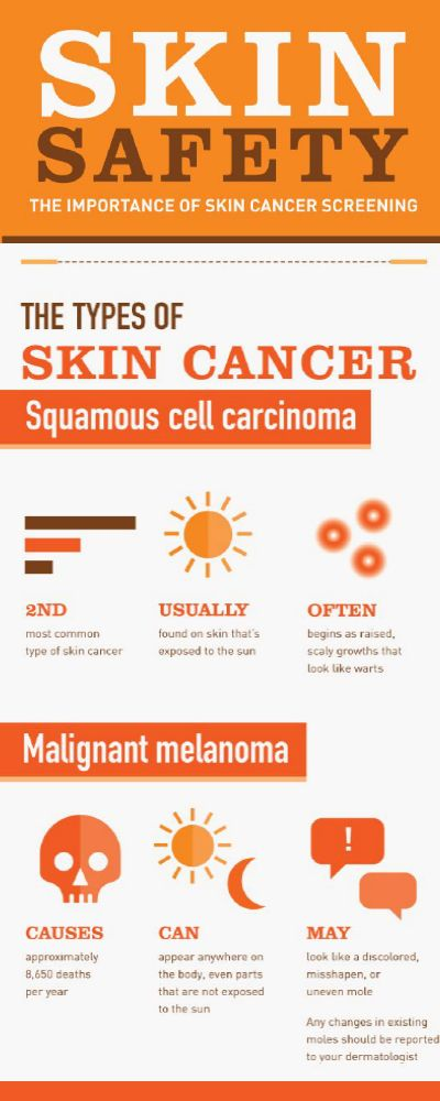 Types of #SkinCancer P-2! More Info On What You Should Know About #Skin #Cancer - goo.gl/KHtM2L #SkinCare #London #dermatology #UK